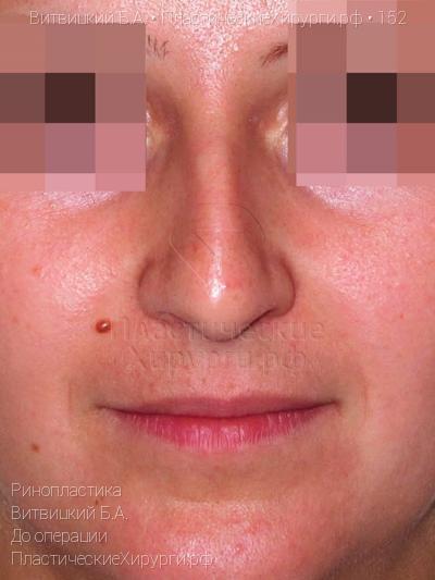 intimnaya-kosmetika-malavit-otzivi