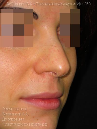 zaporozhe-intimnaya-plasticheskaya-hirurgiya