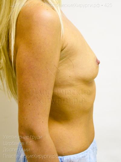Рейтинг пластических хирургов москвы по маммопластике
