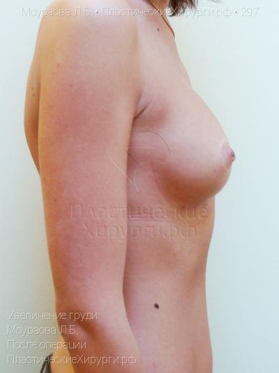 хирургия груди пластическая фото